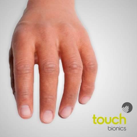 Pròtesi de silicona per a amputació parcial de mà